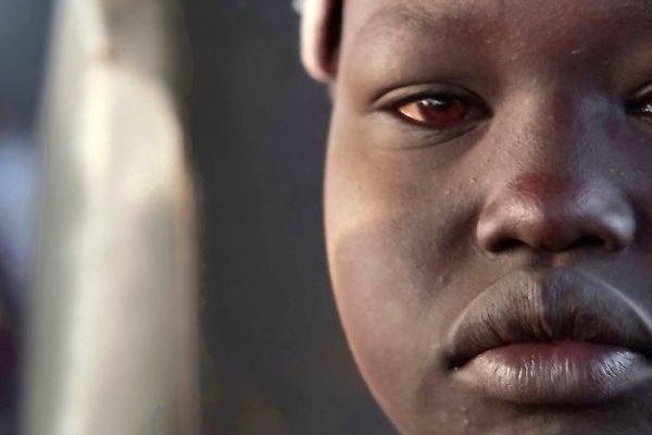 Sud-sudanesos, refugiats a la regió del Nil Occidental - Dir. Joaquim Vila - Cerdanya Film Festival 2020